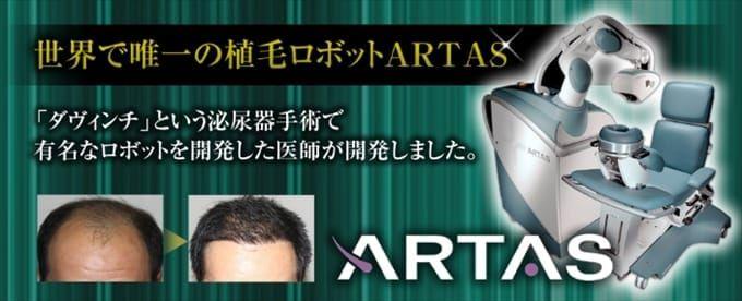生え際に関するお悩みはアルタス(ARTAS)による自毛植毛で!