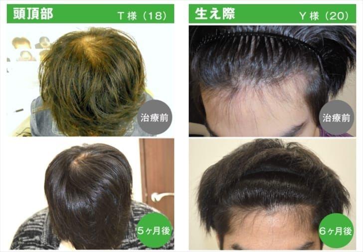抜け毛が始まる20代・30代だからこそ治療が大切!
