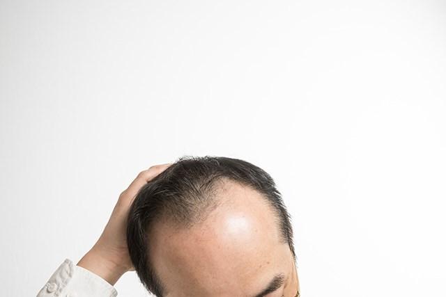 頭部を気にする男性