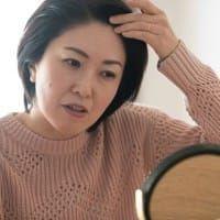 女性のAGA「FAGA」の症状・原因・治療法まとめ